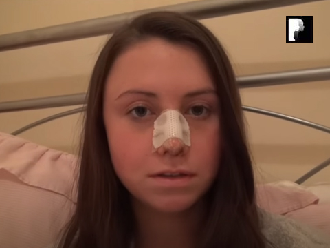 Watch Video: Rhinoplasty & Septoplasty Video Diary Day 2 After Surgery