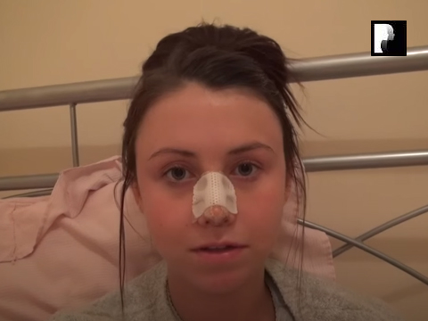 Watch Video: Rhinoplasty & Septoplasty Video Diary Day 3 After Surgery
