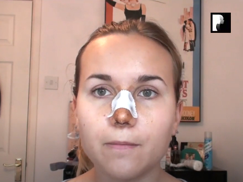 Rhinoplasty Video Diary –Day 6 After Surgery, 7 of 12