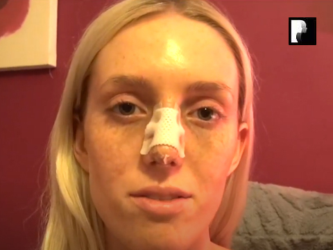 Closed Rhinoplasty Video Diary –Day 2 After Surgery, 4 of 10