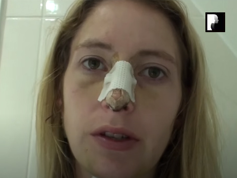 Watch Video: Rhinoplasty & Chin Implant Video Diary Day 6 After Surgery