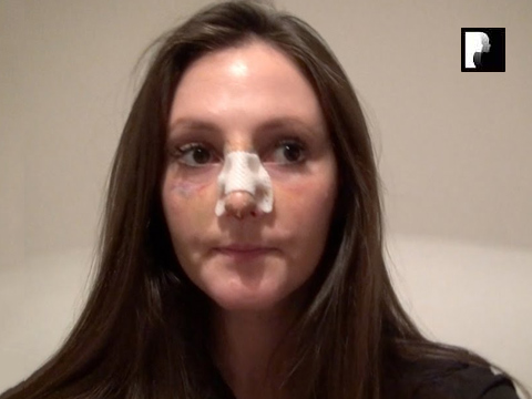 Rhinoplasty Video Diary –Day 8 After surgery, 10 of 18