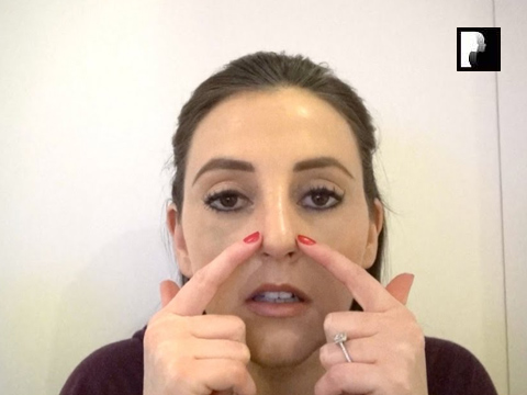 Rhinoplasty Video Diary –Day 10 After surgery, 12 of 18
