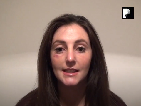 Rhinoplasty Video Diary –Day 13 After surgery, 15 of 18