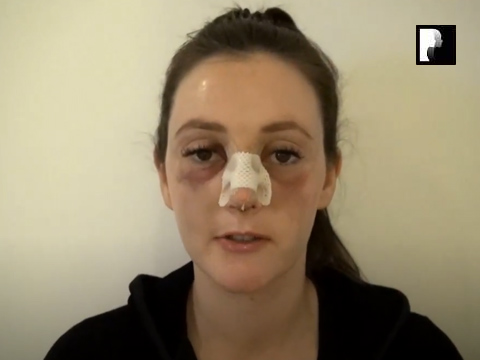 Rhinoplasty Video Diary –Day 2 After surgery, 4 of 18
