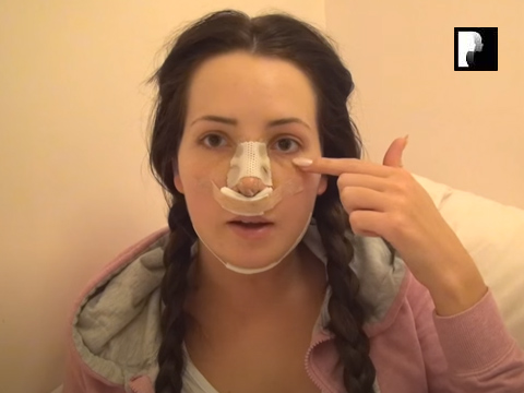 Rhinoplasty & Chin Implant Video Diary Day 3 After Surgery