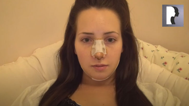 Watch Video: Rhinoplasty and Chin Implant Sedation Experience & Recovery