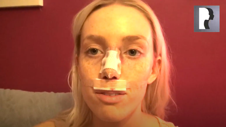 Watch Video: Closed Rhinoplasty Video Diary - 2 Hours After Surgery, 1 of 10