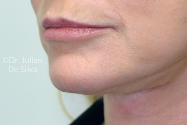 Skin & Laser Resurfacing After 1