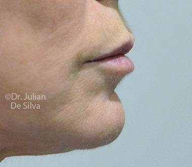 Skin & Laser Resurfacing Before 3