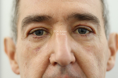 Eyelid Surgery (Blepharoplasty) After 136