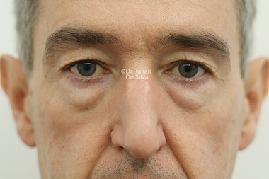 Eyelid Surgery (Blepharoplasty) Before 136