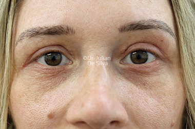 Eyelid Surgery (Blepharoplasty) After 135