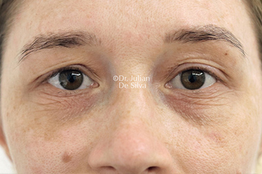 Eyelid Surgery (Blepharoplasty) Before 135