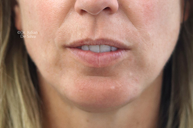 Chin Implants & Reduction After 29