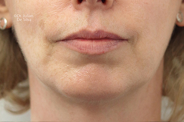 Chin Implants & Reduction After 30