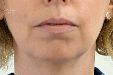 Chin Implants & Reduction Before 30