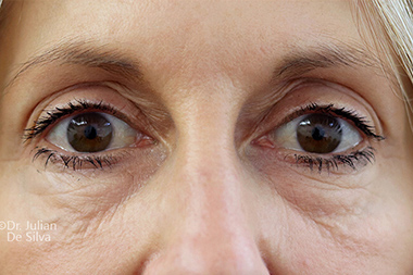 Eyelid Surgery (Blepharoplasty) Before 141