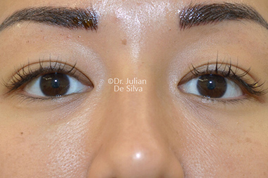 Eyelid Surgery (Blepharoplasty) Before 143