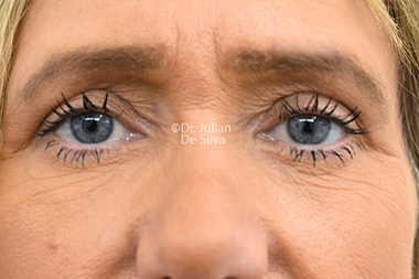 Eyelid Surgery (Blepharoplasty) After 137