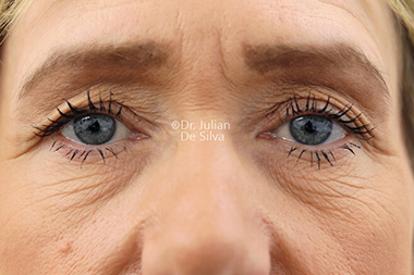 Eyelid Surgery (Blepharoplasty) Before 137