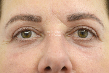 Eyelid Surgery (Blepharoplasty) After 138