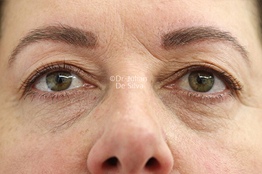 Eyelid Surgery (Blepharoplasty) Before 138