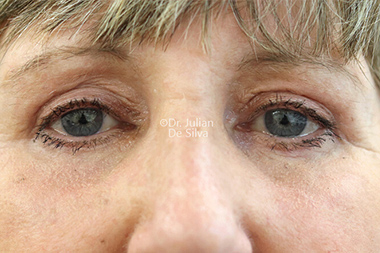 Eyelid Surgery (Blepharoplasty) After 139