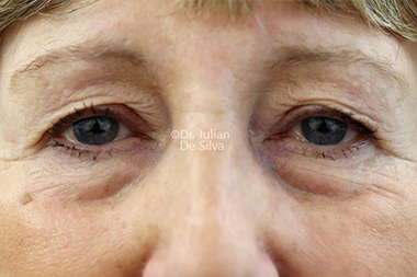 Eyelid Surgery (Blepharoplasty) Before 139