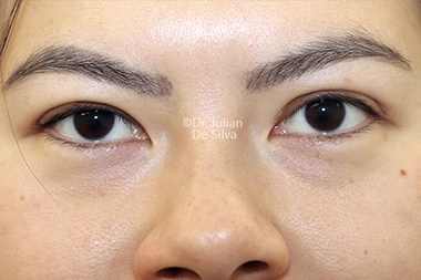Eyelid Surgery (Blepharoplasty) After 144