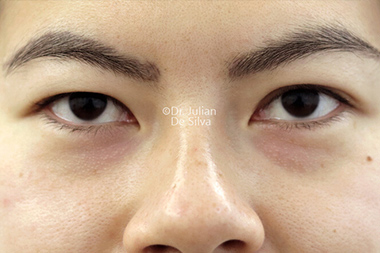 Eyelid Surgery (Blepharoplasty) Before 144
