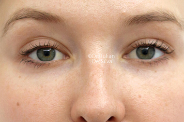 Eyelid Surgery (Blepharoplasty) After 140