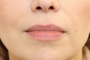 Lip Augmentation & Reduction Before 16