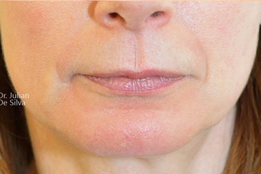 Lip Augmentation & Reduction Before 17