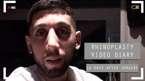 Rhinoplasty video diary - 14 days after surgery