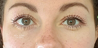 Eyelid Surgery (Blepharoplasty) After 142