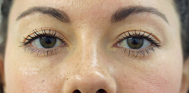 Eyelid Surgery (Blepharoplasty) Before 142