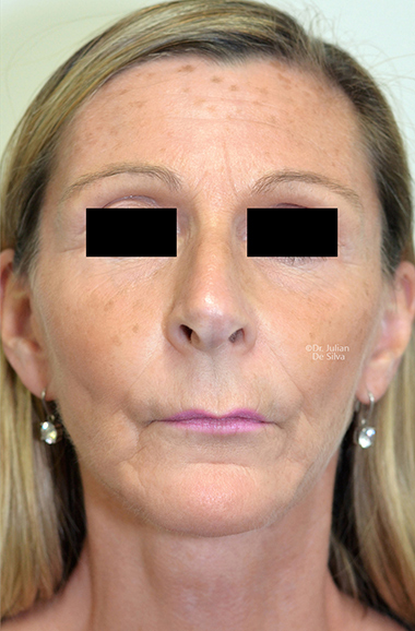 Non-Surgical Treatments After 11