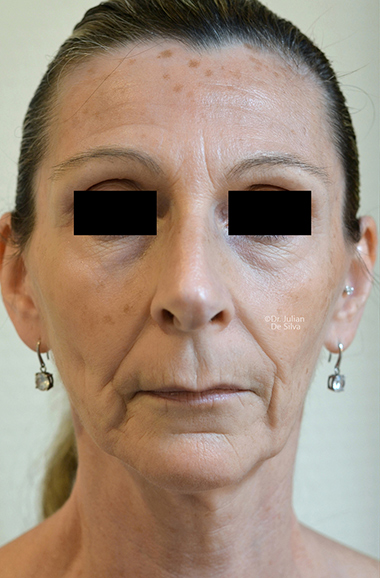 Non-Surgical Treatments Before 11