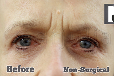 Non-Surgical Treatments Before 12