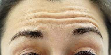 Non-Surgical Treatments Before 13