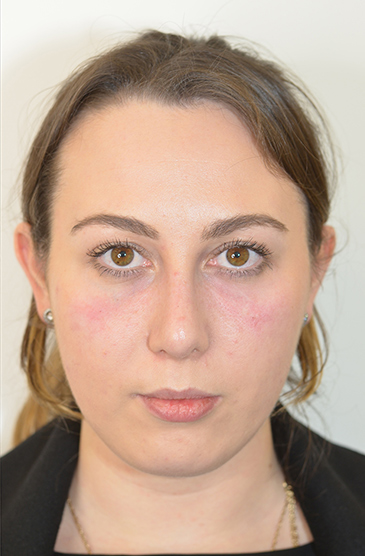 Non-Surgical Treatments After 14