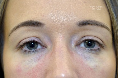 Non-Surgical Treatments After 15