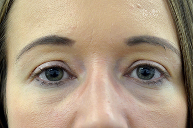 Non-Surgical Treatments Before 15