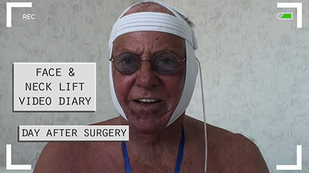Face and neck lift video diary
