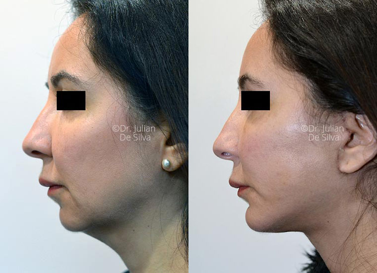 Woman's face, before/after Facelift and NeckLift treatment, side view, patient 1
