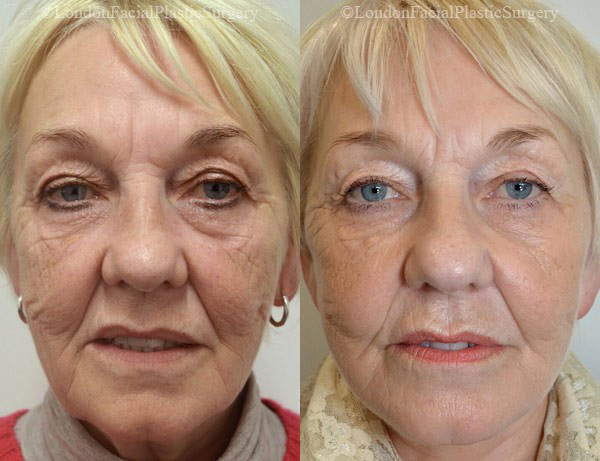 Female face, before and after Deep Plane Facelift treatment, front view, patient 5