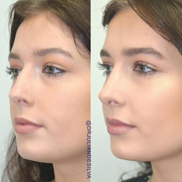 Female face, before and after nose surgery treatment, oblique view, patient 4