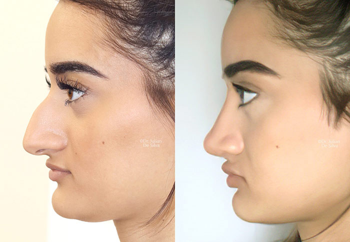 Female face, before and after nose surgery treatment, side view, patient 3