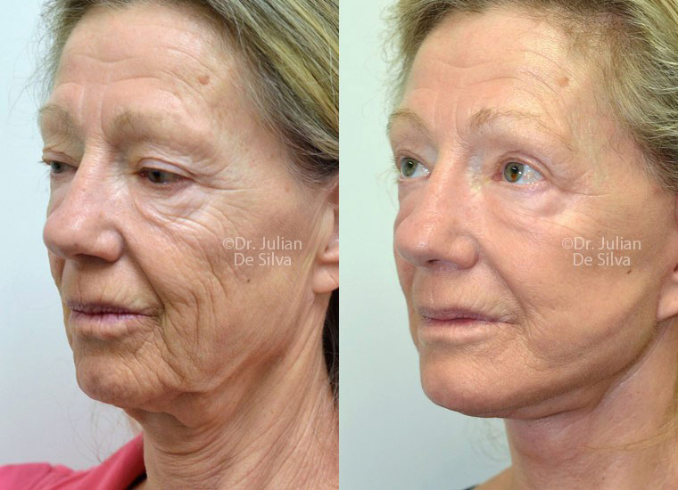 Female face, before and after Deep Plane Facelift treatment, oblique view, patient 2
